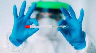 Habilitado en Zafra un punto de atención sanitaria para realizar Test de Antígenos sin cita previa