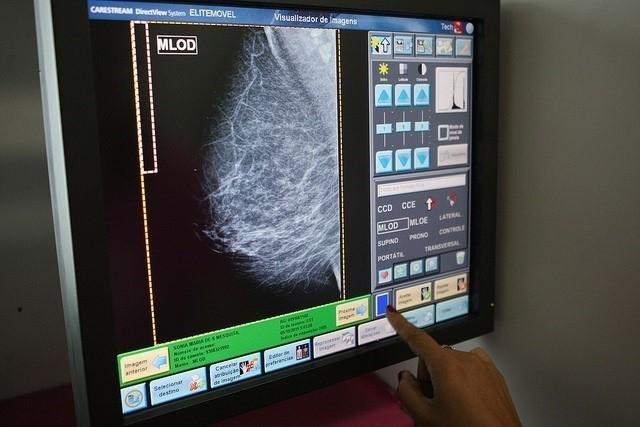 Las unidades móviles de mamografías se desplazarán a Puebla de Sancho Pérez en la comarca durante el mes de abril